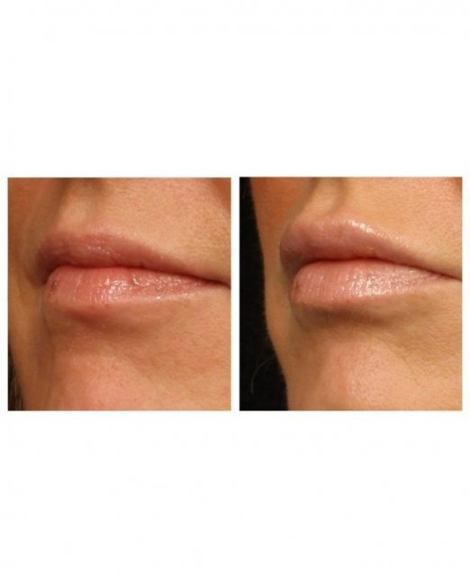 lipvergroting-voor-en-na-643x1000