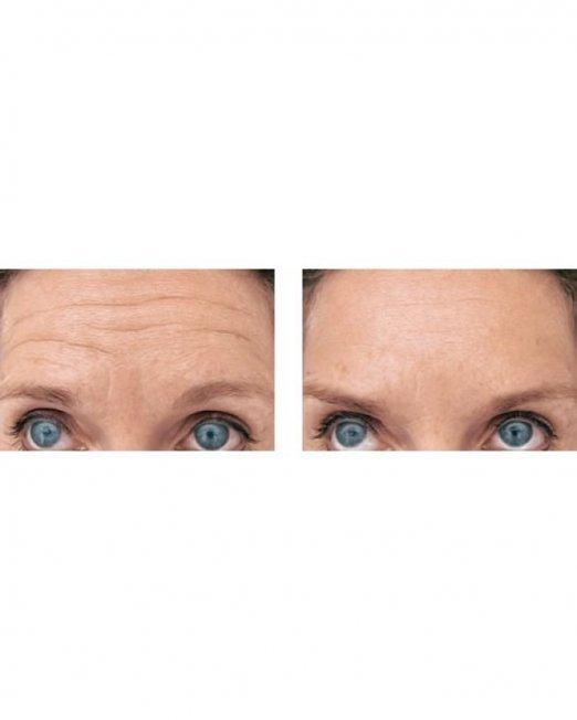 voorhoofd-botox-behandeling-den-haag-zoetermeer-643x1000