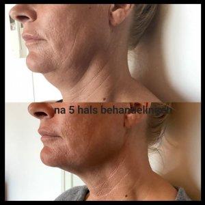pascaud contour behandeling hals