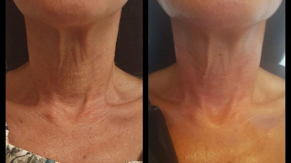 pascaud-hals-behandeling